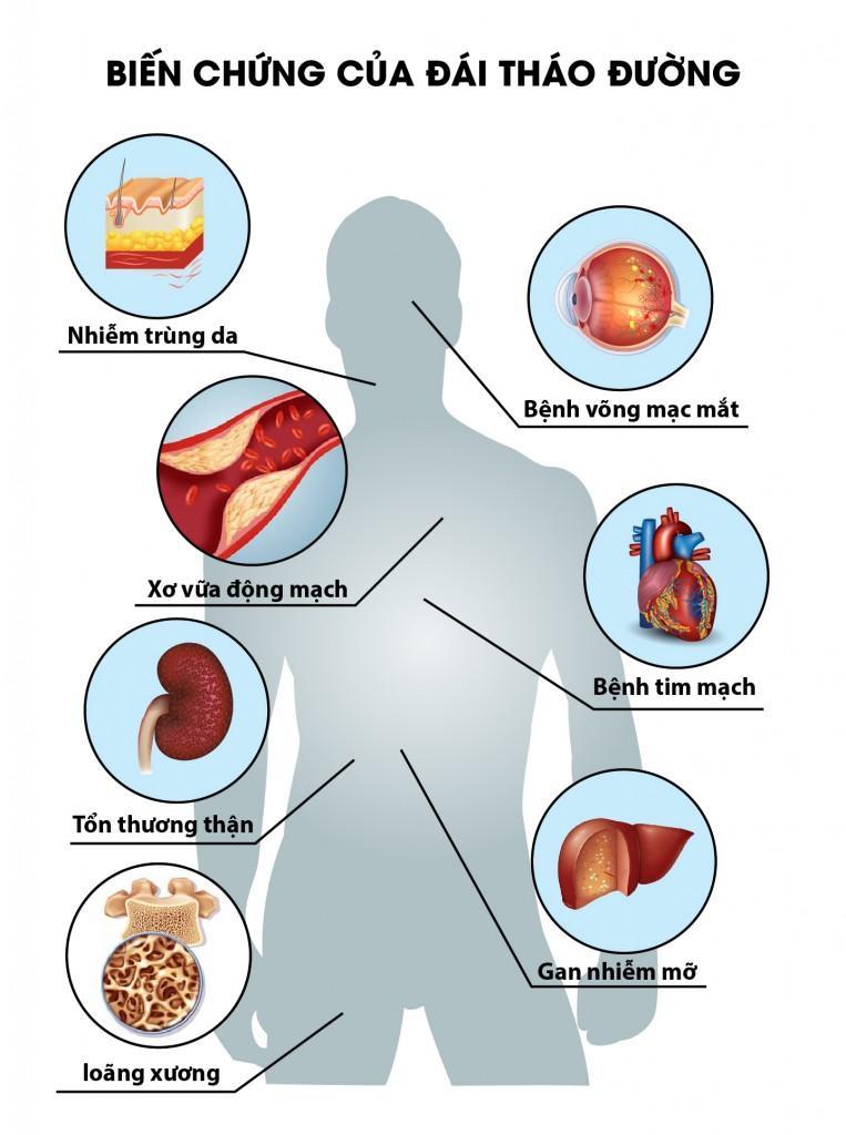 Bức ảnh này sẽ giúp bạn hiểu được biến chứng thường gặp của bệnh tiểu đường tuýp 2.